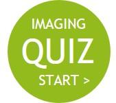 Image-Quiz-Logo